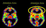 Comparing The Neural Images Of Three Different Types Of Meditation